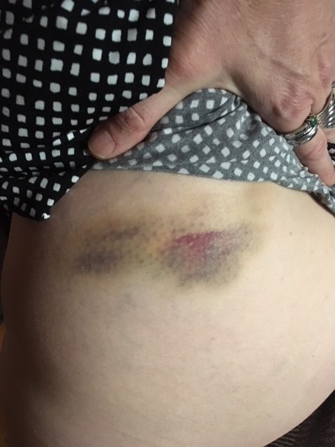 Bruised hip